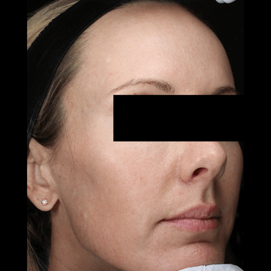 Melasma Treatment After