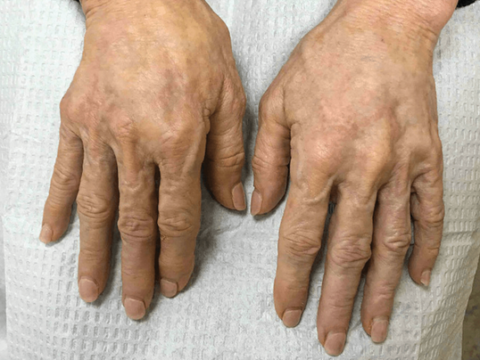 Younger Looking Hands After
