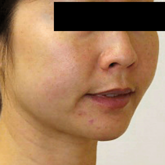 Contoured Jaw Line, Kybella Before