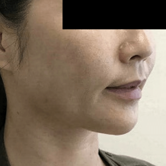 Contoured Jaw Line, Kybella After