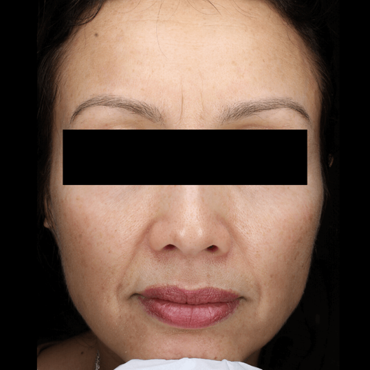 Treatment for Melasma After