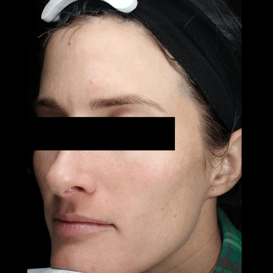Luminous Skin Post Fraxel After